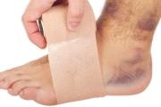 Pora doktora: Jak leczyć stłuczenia?