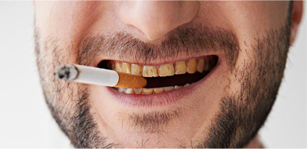 żólte zęby spowodowane paleniem