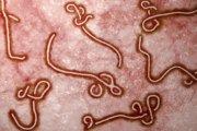 Ebola może być... chorobą weneryczną