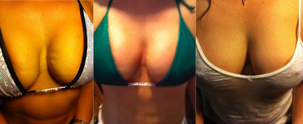 UNILAD-vampire-breast-lift-before9.png