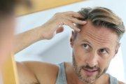 Czy można zatrzymać wypadanie włosów u mężczyzn?