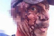 Tak wygląda człowiek po dwóch atakach grizzly
