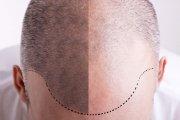 Tatuaż włosów, czyli jak ukryć łysinę