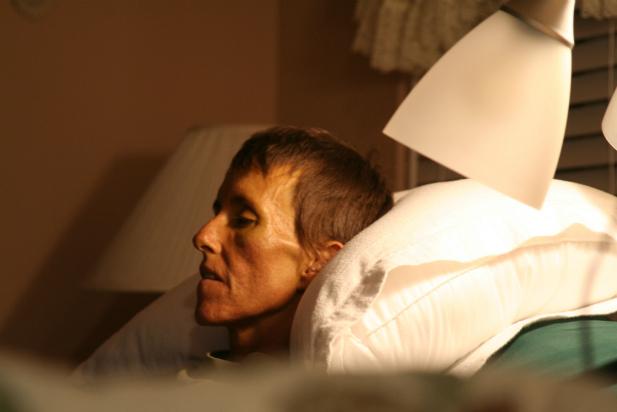 617Dieta w chorobie nowotworowej (httpwww.jpg