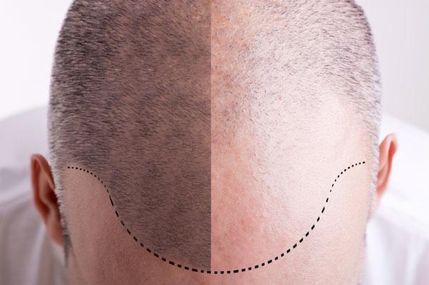 Tatuaż Włosów Czyli Jak Ukryć łysinę