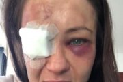 Karolina Kowalkiewicz po walce. Straszą, że może stracić wzrok