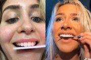 TikTokerzy zachęcają do piłowania zębów pilnikiem do paznokci